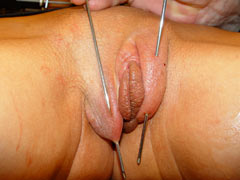Long needles in labia